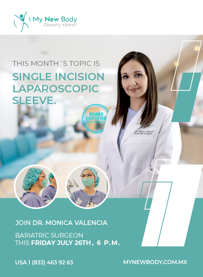 Single Incision Gastric Sleeve Q&A